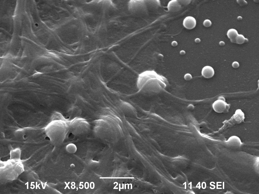 Scanning electron microscopy image showing detail of the neural network on a layer of nanoparticles.
