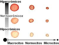 Hematocrito y vcm bajos